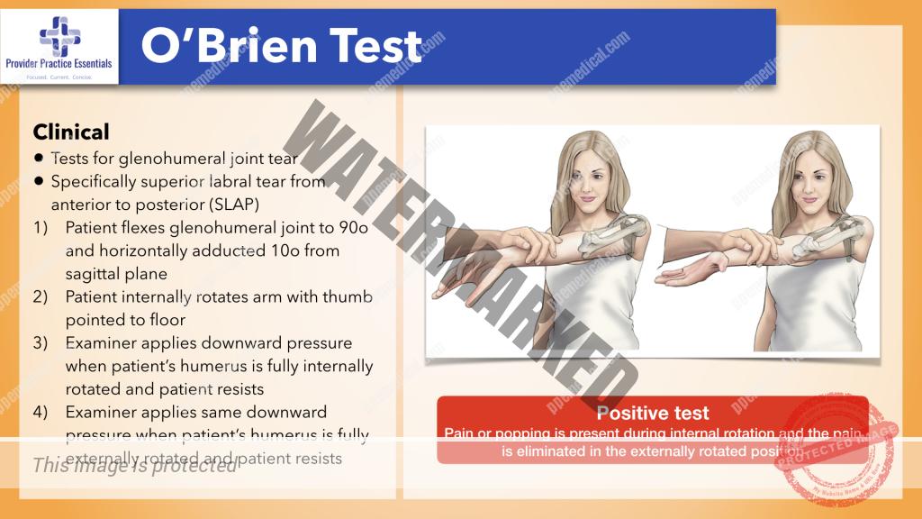 O Brien Test