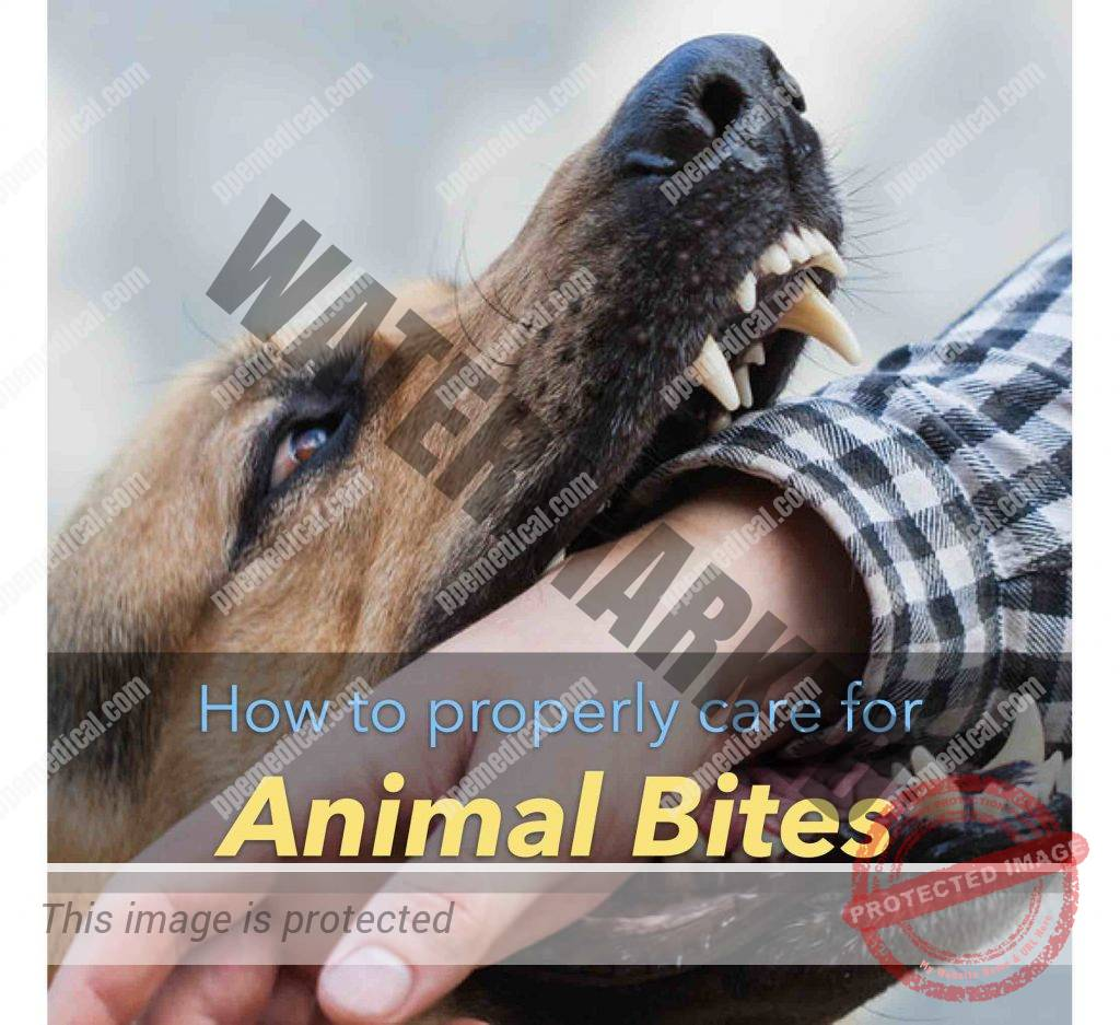 How to properly care for animal bites