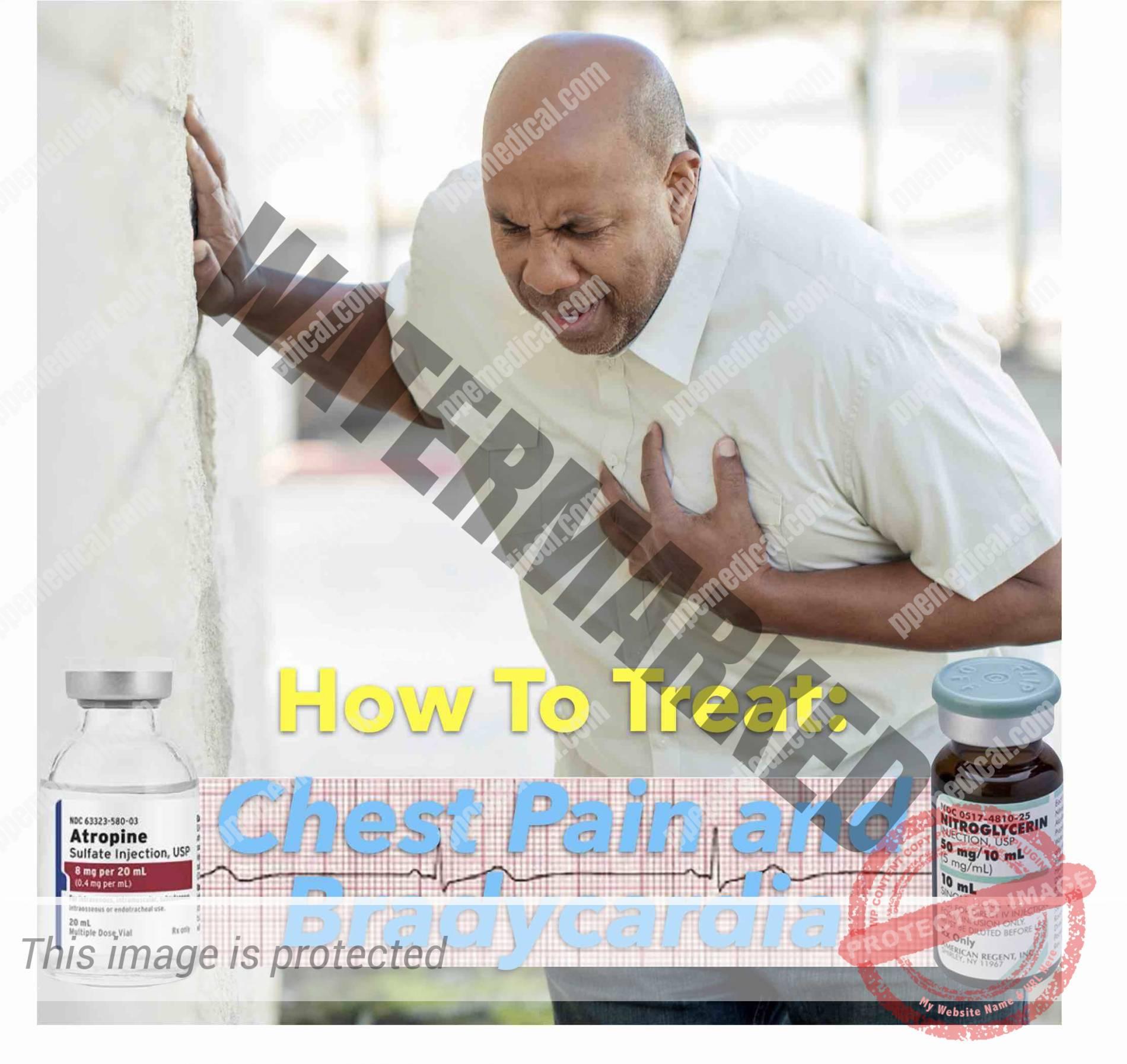 Chest Pain and Bradycardia