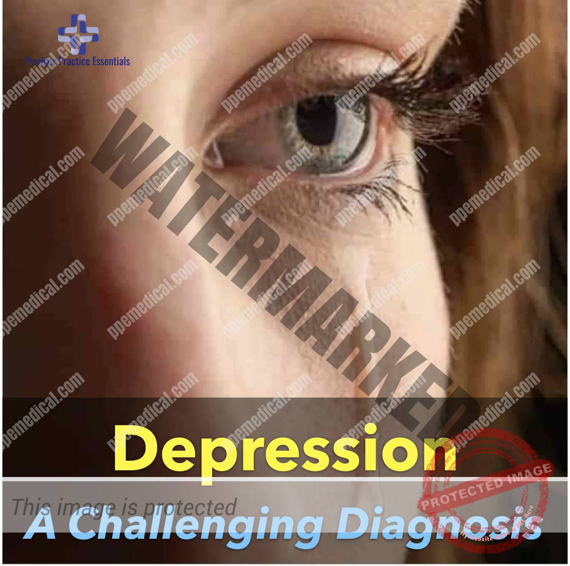 Depression - A Challenging Diagnosis