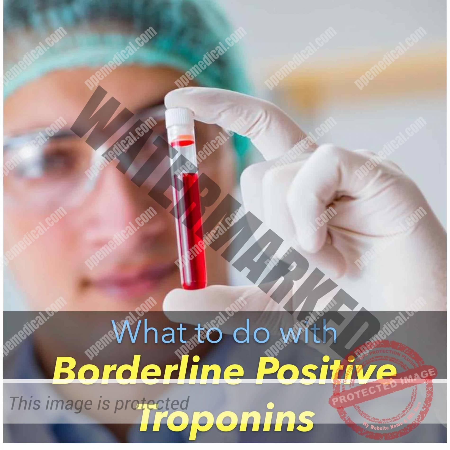 Borderline Positive Troponins