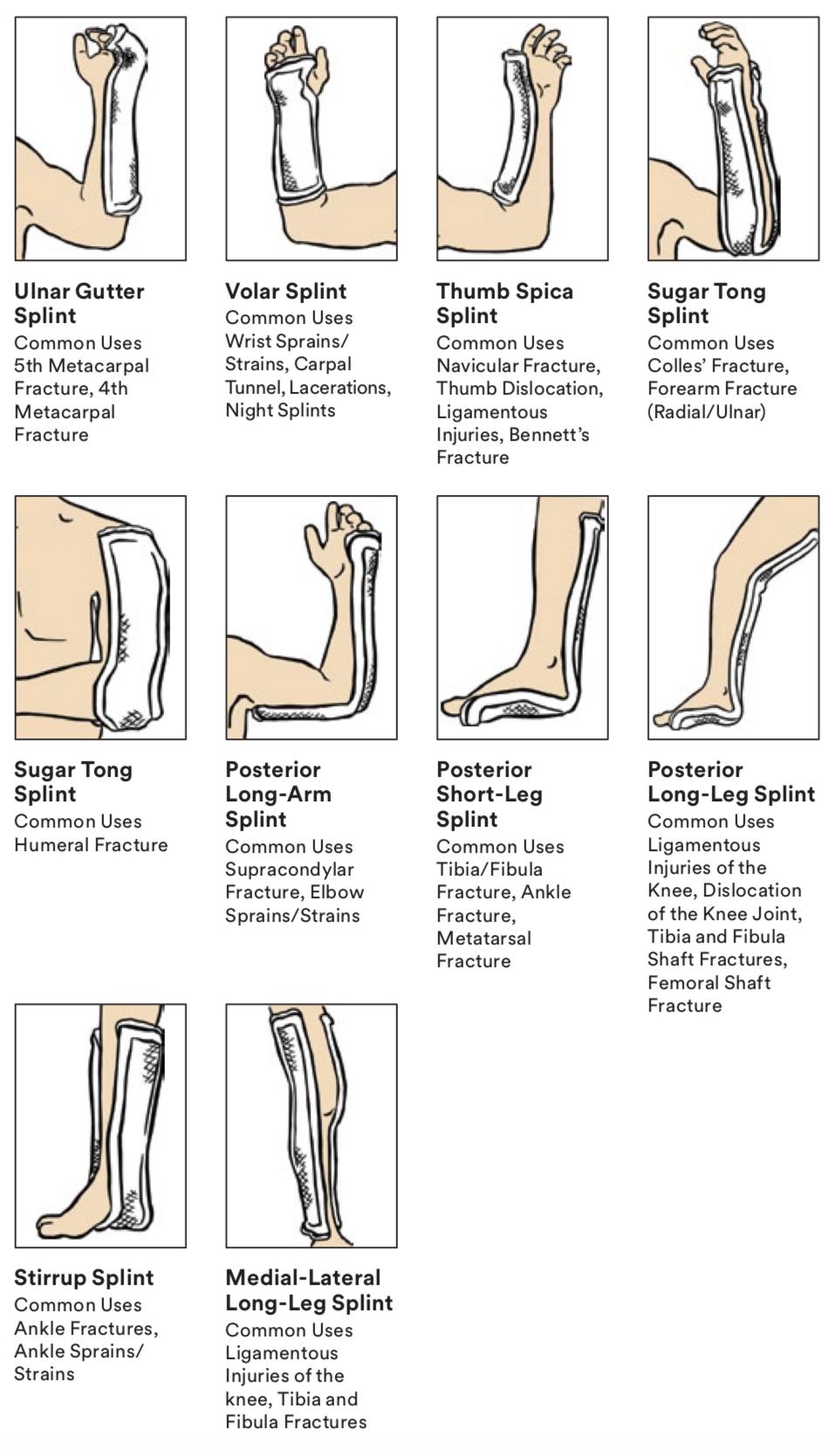 Shin Splints Diagram