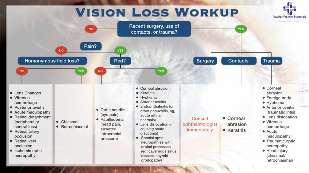 vision loss workup graph