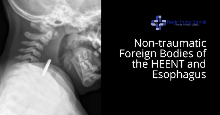 Non-traumatic Foreign Bodies of the HEENT and Esophagus