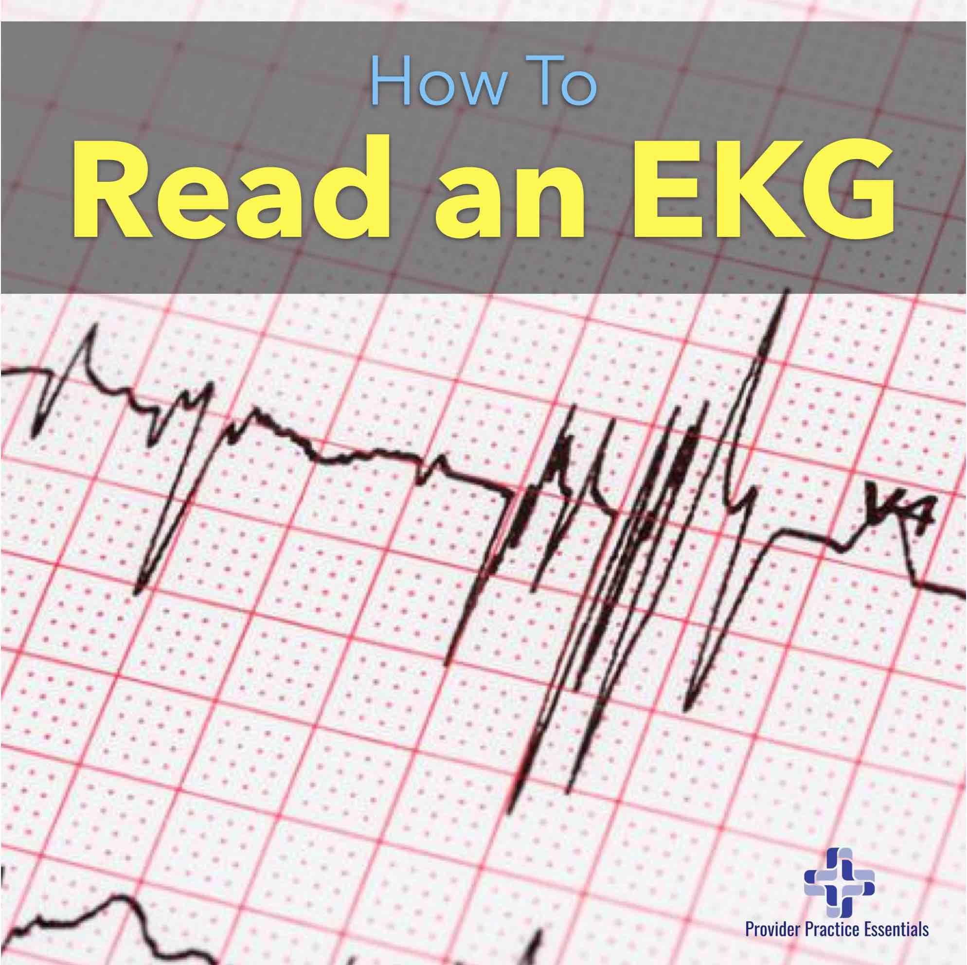 How to Read an EKG