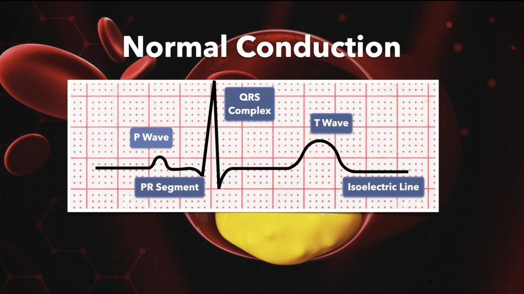 Normal Cardiac Conduction