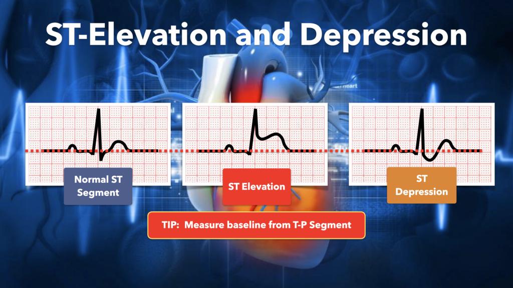 ST Elevation and Depression