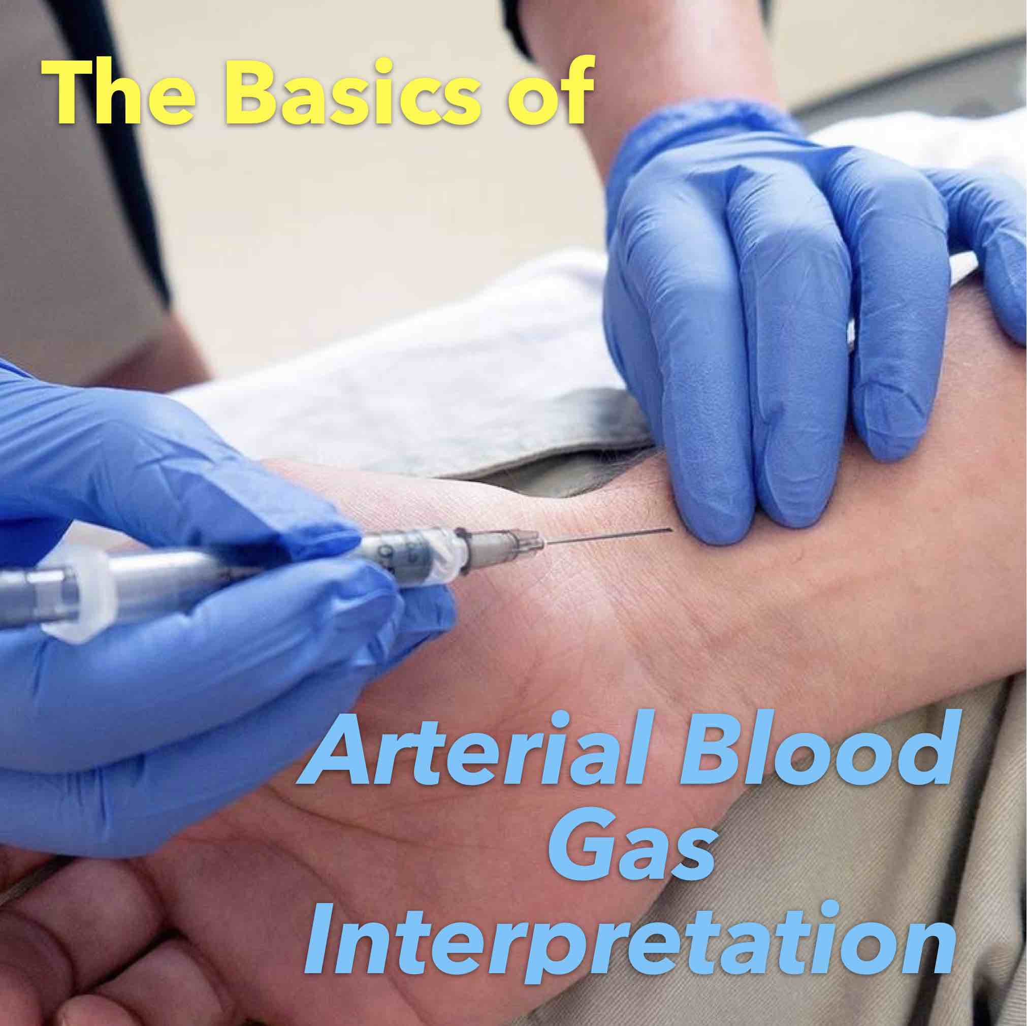 The Basics of Arterial Blood Gas Interpretation